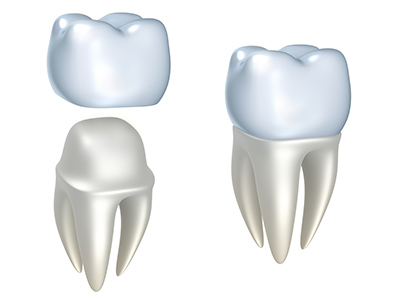 Dental crown model at Alexandra Garcia, DDS.