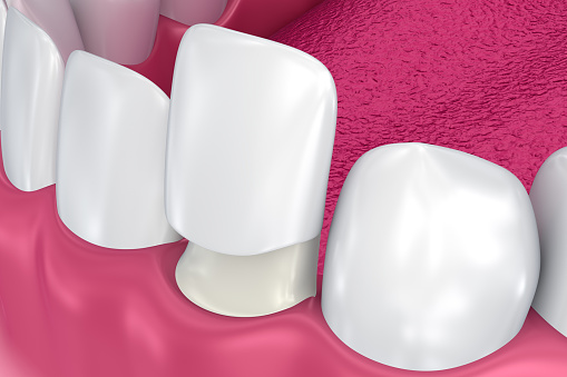 A close up of the veneers at Alexandra Garcia, DDS