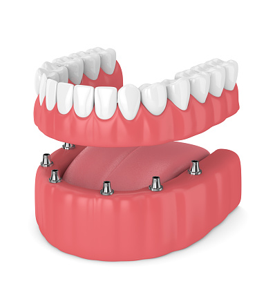 Rendering of an overdenture at Alexandra Garcia, DDS.