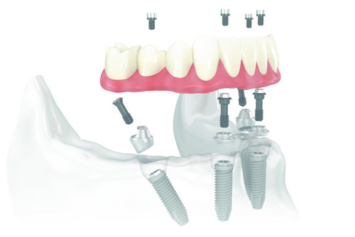 A skeletal model of All-on-4 dental implants being attached at Alexandra Garcia, DDS.