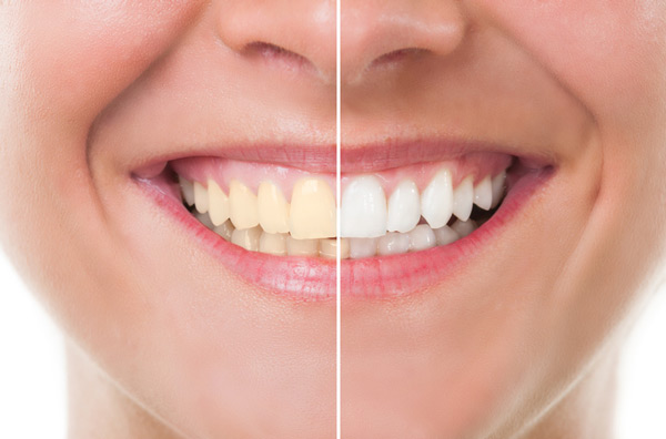 Before and after photo of professional teeth whitening treatment from Alexandra Garcia, DDS